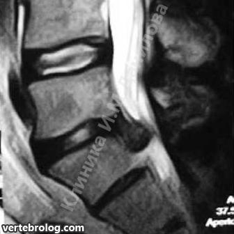 Die Spinalkanalstenose